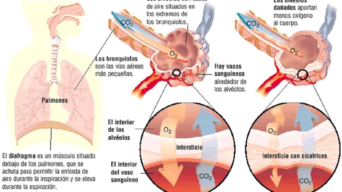 DESARROLLO DENUEVAS TERAPIAS ANTIFIBRÓTICAS
