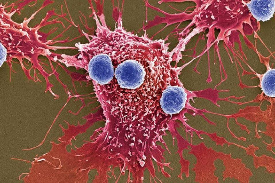El cáncer provoca cada año 9.6 millones de muertes en el mundo.