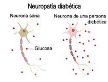 PASO FIRME CONTRA LA NEUROPATÍA DIABÉTICA