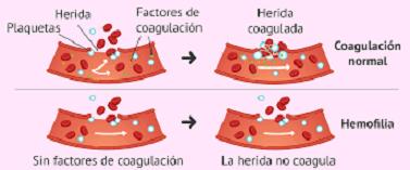 NUEVA TERAPIA PARA LA HEMOFILIA TIPO A